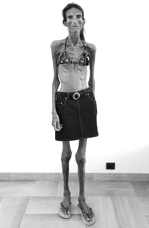 世上最瘦的女人_世上最不要脸女人图片_世上最难看的女人_排行榜网