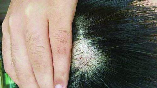 """""""   头发脱落有红斑   竟是患了毛囊粘蛋白病   该院皮肤科主任医师"""