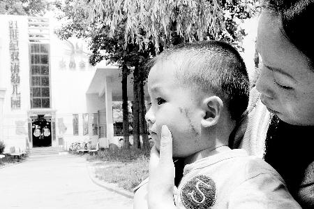 胳膊被玻璃划伤图片_幼儿园装修 划伤宝宝脸图片